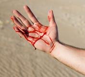 Mano sangrienta Imagen de archivo libre de regalías