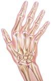 Mano y fingeres - osteoartritis de las juntas Foto de archivo libre de regalías