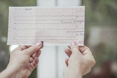 Manos con el cardiograma Imagen de archivo libre de regalías