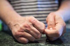 Manos con enfermedad del psoriasis o del eczema Problemas de salud con la piel foto de archivo
