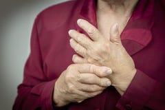 Manos de la artritis reumatoide Imágenes de archivo libres de regalías