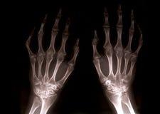 Manos de la radiografía ilustración del vector