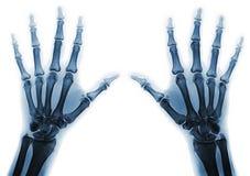 Manos de la radiografía Imagen de archivo libre de regalías