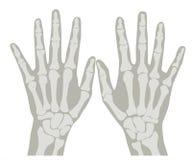 Manos 1 de la radiografía Foto de archivo libre de regalías