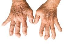 Manos del paciente de la artritis reumatoide aislado en blanco Imagen de archivo libre de regalías