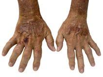 Manos mayores con artritis reumatoide Imágenes de archivo libres de regalías