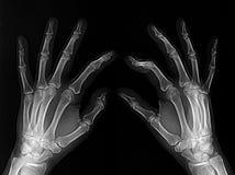 Manos radiografiadas Imágenes de archivo libres de regalías