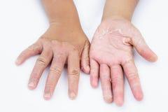 Manos secas, cáscara, dermatitis de contacto, infecciones por hongos, piel inf Fotos de archivo
