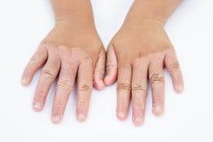 Manos secas, cáscara, dermatitis de contacto, infecciones por hongos, piel inf foto de archivo libre de regalías