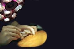 Manos y escalpelo - concepto de la cirugía Imagen de archivo libre de regalías