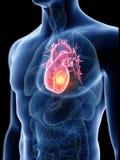 Mans hjärtatumör vektor illustrationer