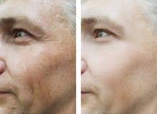 Manskrynklor vänder mot före och efter tillvägagångssätt arkivfoton