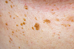 Many nevus on human skin. Close up photo of many nevus on human skin Stock Photography