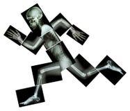 Maraton (ludzka kość biega), (Całego ciała promieniowanie rentgenowskie) Obrazy Royalty Free