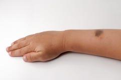 Marca de nacimiento en la mano derecha Imagen de archivo libre de regalías