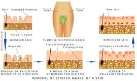 Marcas de estiramento de uma pele Ilustração do Vetor