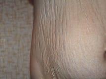 Marcas de estiramiento después del embarazo Imagen de archivo