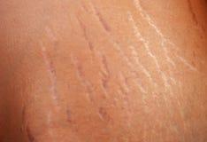 Marcas de estiramiento en el cuerpo Foto de archivo