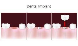 Marche à suivre d'implant dentaire illustration stock