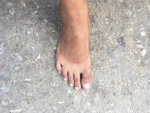 Mark da queimadura no pé desencapado após ter takeing sapatas fora imagem de stock royalty free