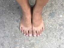 Mark of sunburn on bare foot after takeing shoes off. Stock Photo