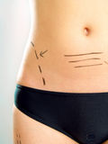 Marked abdomen for plastic surgery Royalty Free Stock Images