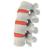 Marked intervertebral discs Stock Image