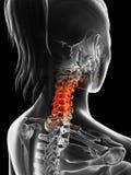 Markerad cervikal rygg Arkivbild