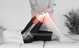 Markerade ben av kvinnan på fysioterapeuten arkivbilder