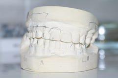 Stomatologic människakäkar för Gypsum arkivbild