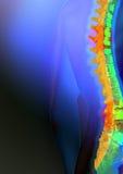 Markierte spinale Spannweite stockbild