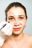 Marking Face For Cosmetic Surgery Royalty Free Stock Photo
