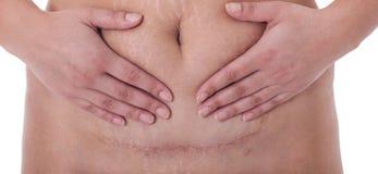 Marque con una cicatriz después de una sección cesariana, línea del bikini Imagen de archivo libre de regalías