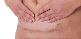 Marque con una cicatriz después de una sección cesariana, línea del bikini Fotos de archivo libres de regalías