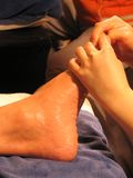 masaż. Obrazy Royalty Free
