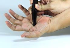 Masaje de la mano usando la herramienta de los cuernos de Buffaloo Imagen de archivo