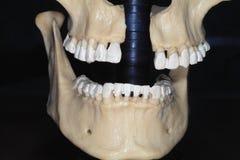 Mascella. immagine stock