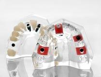 Mascella artificiale Fotografia Stock