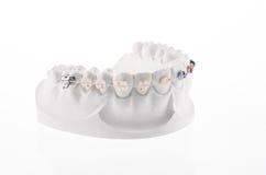 Mascella più bassa dentaria fotografia stock