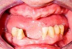 Mascella superiore di Tootless Immagini Stock