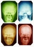 Maschere dei raggi X Immagine Stock Libera da Diritti