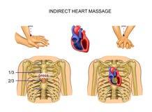 Massage de coeur indirect illustration libre de droits