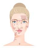 Massage de Shiatsu Points de visage Image stock