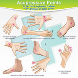 Massage Therapy Acupressure Points. Visual aids vector illustration for independent medical therapeutic help. Acupressure some body parts (hands, feet) to get Royalty Free Stock Images