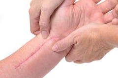 Massagem da terapia Fotos de Stock