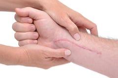 Massagem do braço foto de stock
