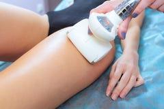 Massagen för Closeupvakuumrullen på flicka lägger benen på ryggen, korrigeringskroppform royaltyfri foto
