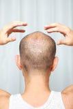 Massaggio del cuoio capelluto Fotografie Stock