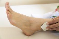 Massaggio del piede con gli elettrodi Immagine Stock