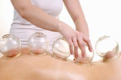 Massaggio foggiante a coppa la parte posteriore di una donna Fotografia Stock